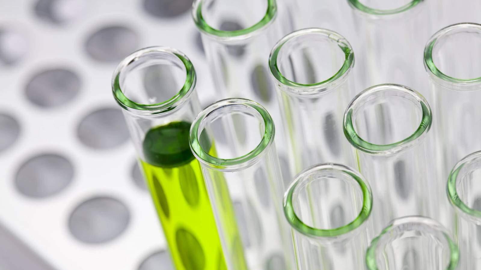 בדיקת קנאביס במעבדה - בריא בישראל